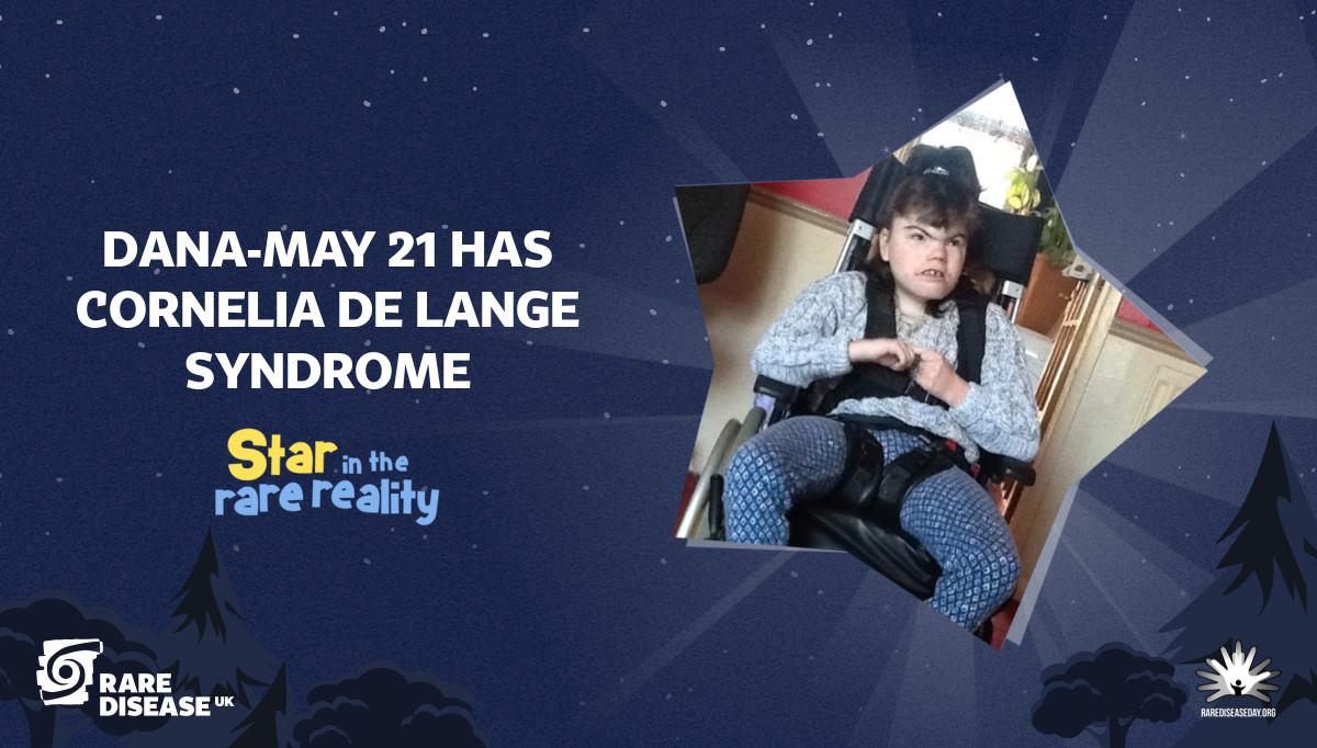 Dana-May 21 has Cornelia De Lange Syndrome