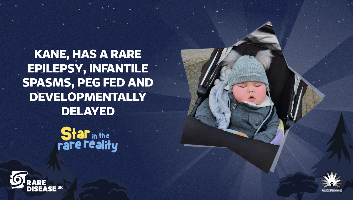 Kane, has a rare epilepsy, infantile spasms, peg fed and developmentally delayed
